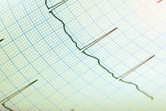 ECG record paper medical background Stock Photo