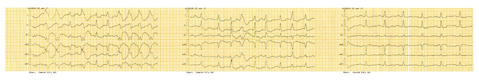 ECG tape with paroxysm of atrial fibrillation and restoration of sinus rhythm. Emergency cardiology. ECG tape with paroxysm of atrial fibrillation and Royalty Free Stock Photography