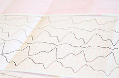 ECG tape with paroxysmal ventricular tachycardia Royalty Free Stock Photo