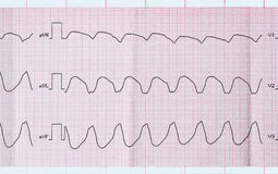 ECG tape with paroxysmal ventricular tachycardia Stock Image