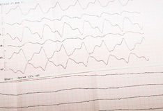 ECG tape with paroxysmal ventricular tachycardia and ventricular Royalty Free Stock Photos