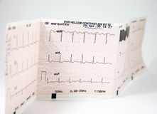 Ecg Test Stock Photo