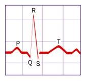ECG trace. Diagram of a typical ECG (EKG) QRS wave Stock Photos