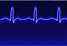 ECG trace. Vector trace of an ECG with realistic glow Stock Photos