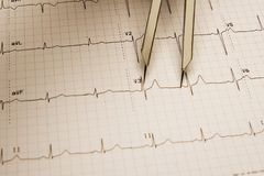 ECG tracing Stock Images