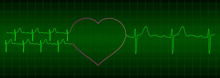 ECG from two hearts after love to one heart Royalty Free Stock Photography