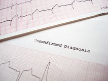 ECG unconfirmed diagnosis. ECG EKG Electrocardiography unconfirmed results royalty free stock images