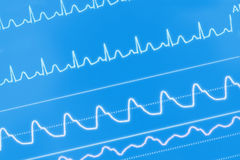 ECG waves on the screen.  Royalty Free Stock Photo