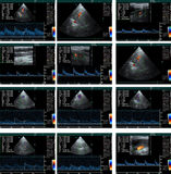 Echo cardiogram. Medical examination - ultrasound study, a set of results royalty free stock image