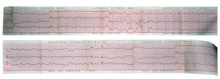 Echocardiogram (ECG, EKG) ανάγνωση καρδιών Στοκ φωτογραφίες με δικαίωμα ελεύθερης χρήσης