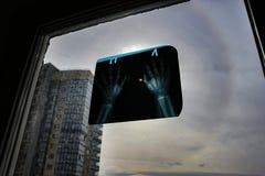 Eclipse solar A proteção ocular não é nenhuma exceção Observação do sol através das mãos da fotografia de raio X fotos de stock royalty free
