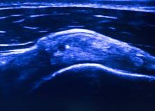 Ecography de l'ecograph EPI d'ultrason Images stock