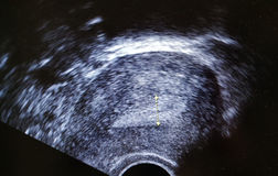 Ecography ultrasound  endometrial  layer Stock Photography