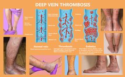 Economy class syndrome mechanism, deep vein thrombosis or DVT, Pulmonary Embolism, coronary thrombosis, diagram