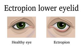 Ectropion of the lower eyelid. Illustration Ectropion of the lower eyelid. For comparison, a healthy and sore eye is depicted Stock Images