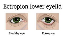 Ectropion van het lagere ooglid Stock Afbeeldingen