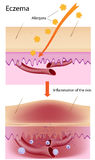 Eczema. Diagram showing skin inflammation, eps8, gradient and mesh printing compatible Stock Photo