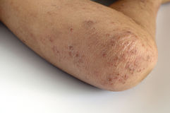 eczema Стоковые Изображения