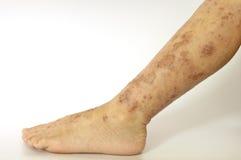 eczema Стоковое Изображение RF