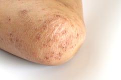 eczema Fotografia Stock Libera da Diritti
