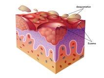 eczema illustrazione di stock