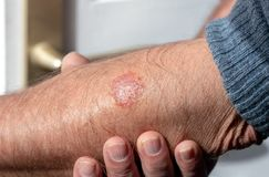 Eczema on the arm of a man. Close up Royalty Free Stock Photos