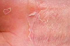 Eczema closeup. Eczema on male hand with skin peeling Stock Photos