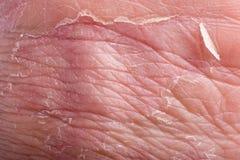 Eczema closeup. Macro of eczema on male grip with skin peeling Royalty Free Stock Photos