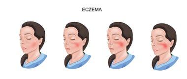 Eczema de dano da pele ilustração royalty free