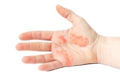 Eczema della mano Immagini Stock