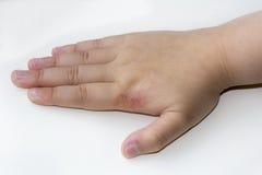 Eczema della pelle Fotografie Stock