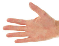Eczema Dermatitis on Palm of Hand. And Fingers Stock Photography