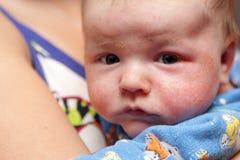 Eczema en la cara de recién nacido Imágenes de archivo libres de regalías