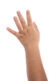 Eczema en la mano del bebé Imágenes de archivo libres de regalías