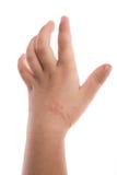 Eczema en la mano del bebé Imagen de archivo libre de regalías