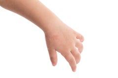 Eczema en la mano del bebé Fotos de archivo