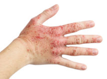 Eczema on a female hand Stock Photography