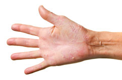 Eczema on a hand. Isolated over white background Stock Photo