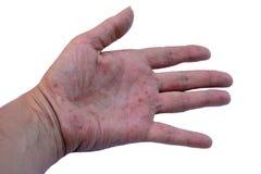 Eczema. Hand isolated on white background Stock Image