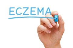 Eczema Handwritten With Blue Marker Stock Image
