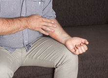 Eczema, medical. Man scratching an eczema on his hands, medical concept Stock Images