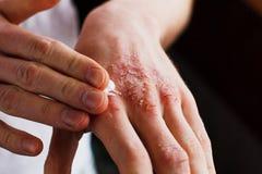 Eczema nas mãos O homem que aplica a pomada, desnata no tratamento da eczema, da psoríase e da outra pele imagens de stock royalty free