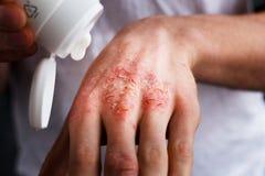 Eczema nas mãos O homem que aplica a pomada, desnata no tratamento da eczema, da psoríase e da outra pele imagem de stock