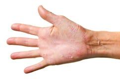 Eczema op een hand Stock Foto