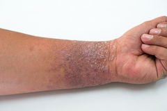 Eczema presents on the hand Royalty Free Stock Image