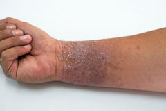Eczema presents on the hand Royalty Free Stock Photo