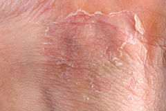 Eczema on skin Stock Images