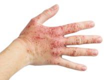 Eczema su una mano femminile Fotografia Stock