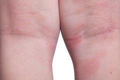 Eczema sulle gambe del bambino Immagini Stock Libere da Diritti