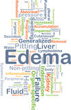 Edema background concept Royalty Free Stock Image
